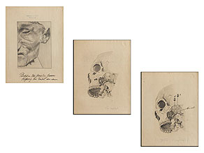 Konvolut von drei Bleistiftzeichnungen